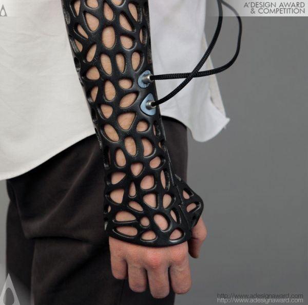 Osteoid-medical-cast