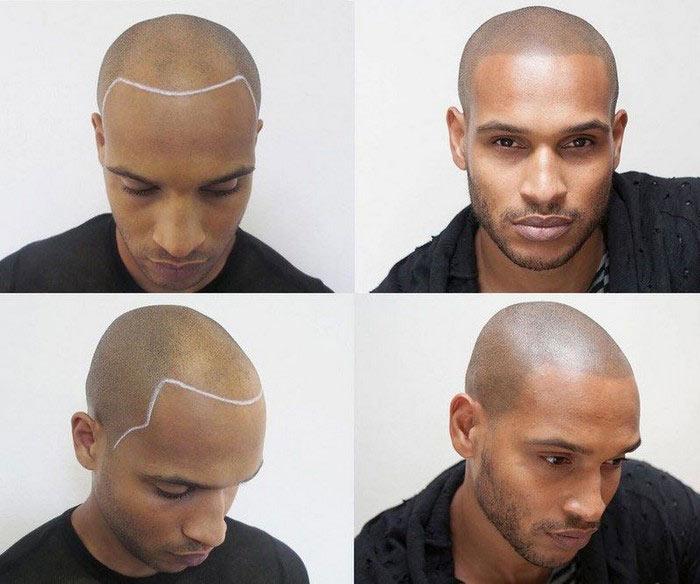 scalp-tattoo-novate2