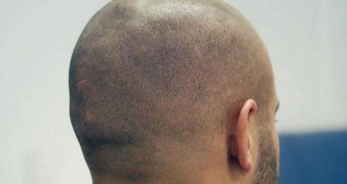 scalp-tattoo-novate4